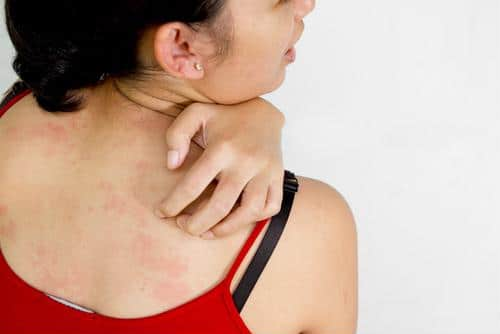 After a rash has grown or persisted, you should seek out medical expertise immediately.